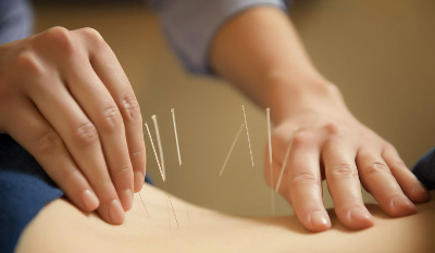 Acupuncture Frequently Asked Questions - Stephanie McCann Physiotherapist